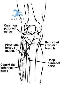 síntomas del atrapamiento del nervio peroneo común