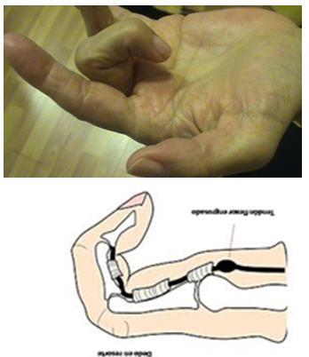 Cirugía Ecoguiada. Dedo en Resorte