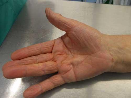 dedos en gatilo