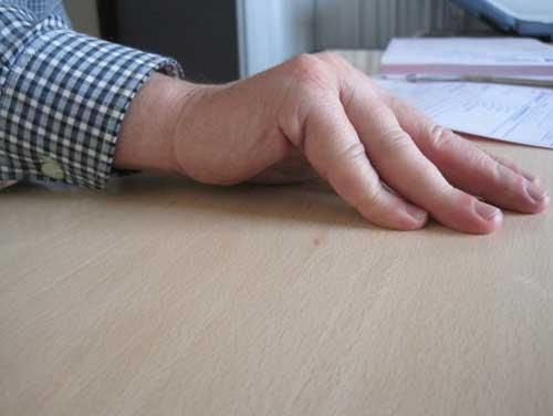 Retracción de dedos en la Enfermedad de Dupuytren