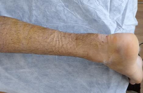 Paciente triatleta operado por tendinosis y paratendinosis del tendón de Aquiles