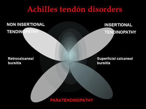 Clasificación actual de las lesiones del tendón de Aquiles