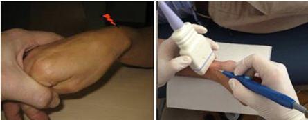 El síndrome de intersección de la muñeca es un cuadro clínico causado por la inflamación de las vainas sinoviales del extensor corto radial y del extensor largo radial