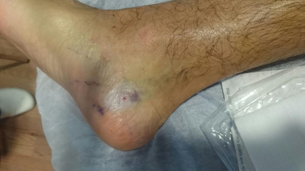 El compromiso de los nervios del pie en el túnel del tarso es, posiblemente, la principal causa de dolor nervioso periférico en la población mundial, aunque en muchas ocasiones no se diagnostica ni se trata correctamente, y los resultados con la cirugía convencional no son muy buenos